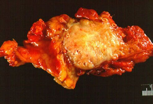 Diet for Chronic Pancreatitis – Prevents Inflammation of the Pancreas